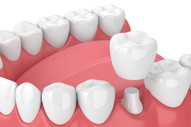 how to repair broken dentures in Mesa